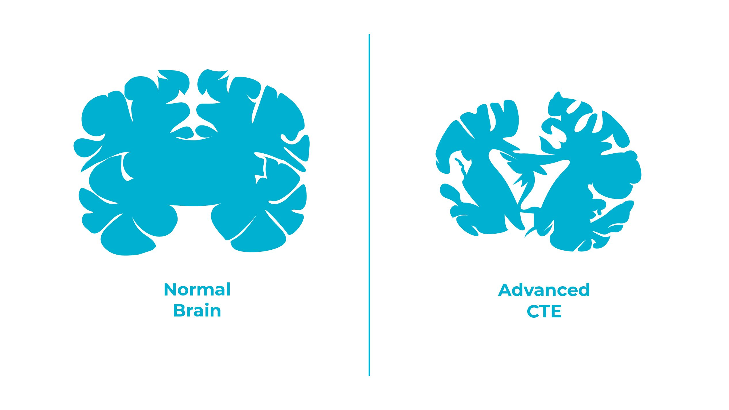 CTE found in athletes with severe brain trauma