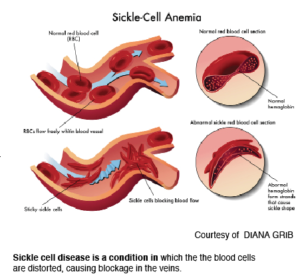 Genetic breakthrough fights sickle cell